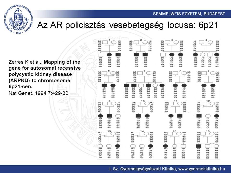 Az AR policisztás vesebetegség locusa: 6p21 Zerres K et al.: Mapping of the gene for autosomal recessive polycystic kidney disease (ARPKD) to chromoso
