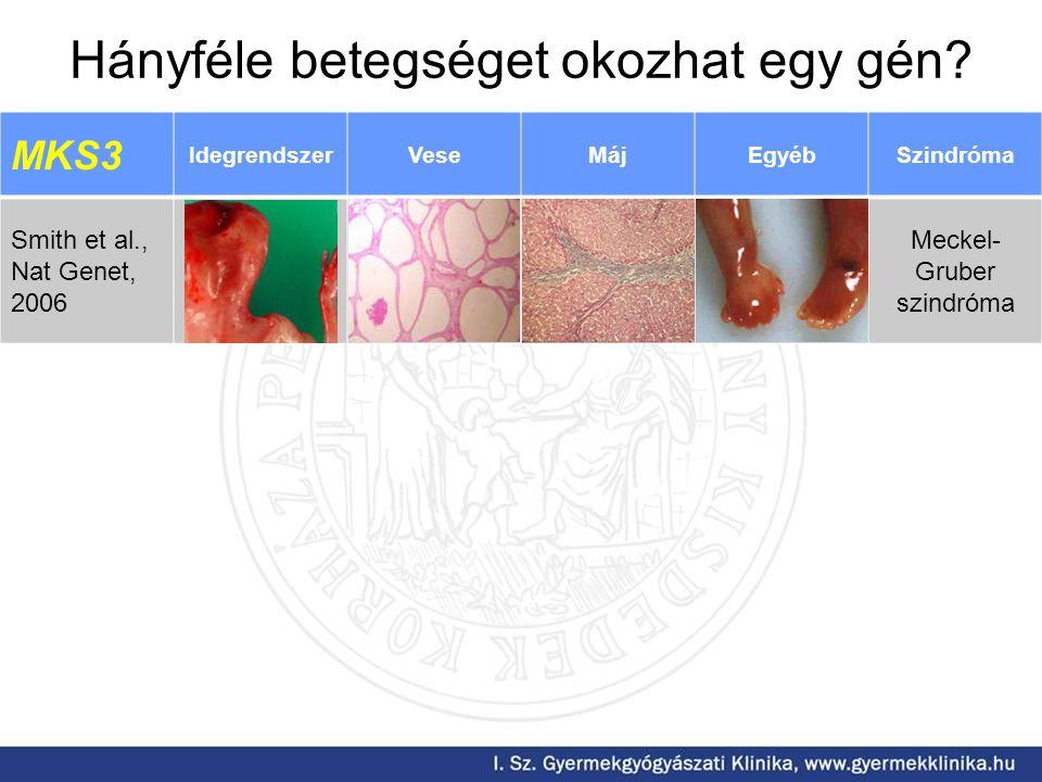 Hányféle betegséget okozhat egy gén? MKS3 IdegrendszerVeseMájEgyébSzindróma Smith et al., Nat Genet, 2006 Meckel- Gruber szindróma