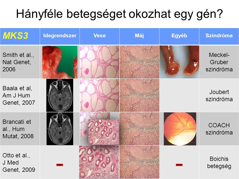 Változatos pleiotropia – MKS3 MKS3 IdegrendszerVeseMájEgyébSzindróma Smith et al., Nat Genet, 2006 Meckel- Gruber szindróma Baala et al, Am J Hum Genet, 2007 Joubert szindróma Brancati et al., Hum Mutat, 2008 COACH szindróma Otto et al., J Med Genet, 2009 -- Boichis betegség Hányféle betegséget okozhat egy gén?