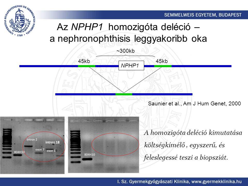 Az NPHP1 homozigóta deléció – a nephronophthisis leggyakoribb oka NPHP1 45kb ~300kb Saunier et al., Am J Hum Genet, 2000 A homozigóta deléció kimutatása költségkímélő, egyszerű, és feleslegessé teszi a biopsziát.