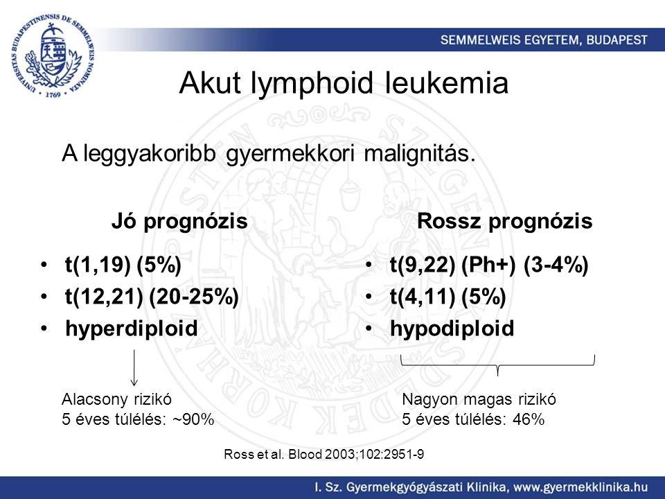 Akut lymphoid leukemia Jó prognózis t(1,19) (5%) t(12,21) (20-25%) hyperdiploid Rossz prognózis t(9,22) (Ph+) (3-4%) t(4,11) (5%) hypodiploid A leggyakoribb gyermekkori malignitás.