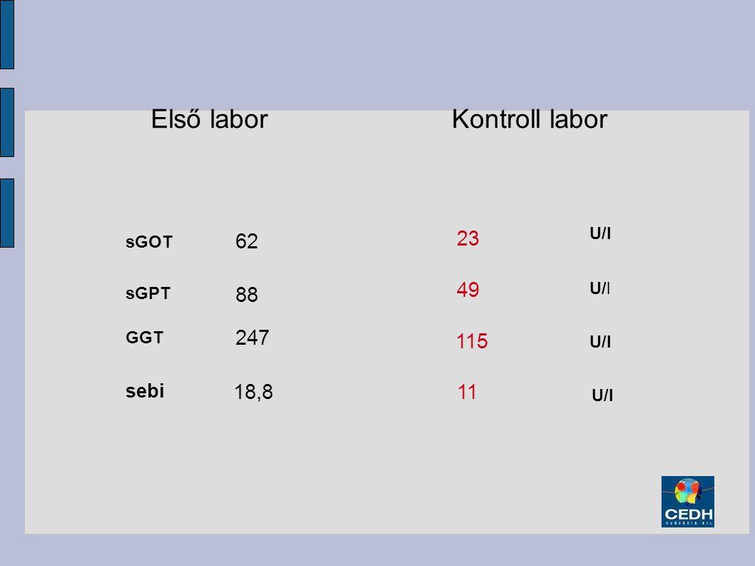 88 247 sGPT GGT Első laborKontroll labor 62 sGOT 23 49 115 U/l sebi 18,811 U/l