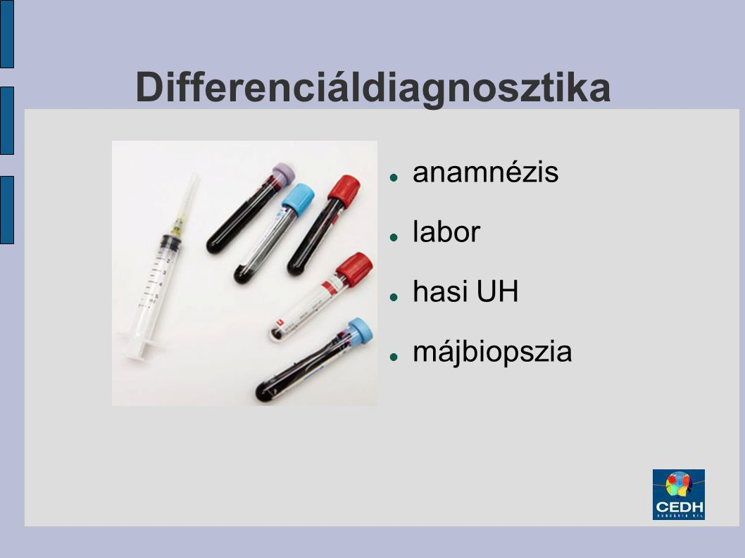 Differenciáldiagnosztika anamnézis labor hasi UH májbiopszia