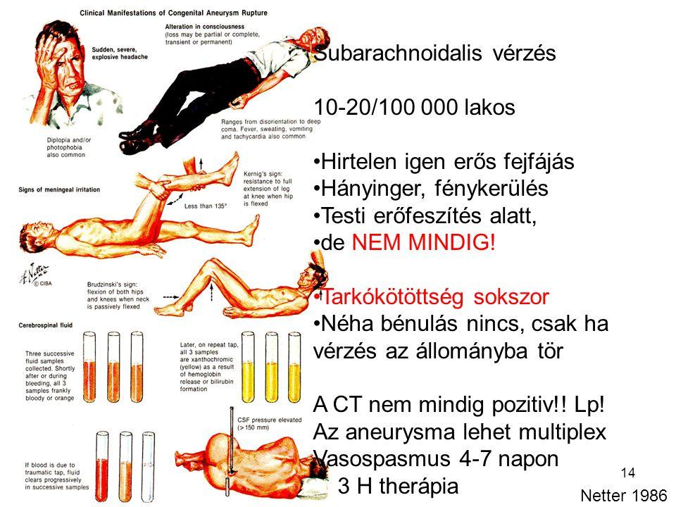 14 Subarachnoidalis vérzés 10-20/100 000 lakos Hirtelen igen erős fejfájás Hányinger, fénykerülés Testi erőfeszítés alatt, de NEM MINDIG! Tarkókötötts