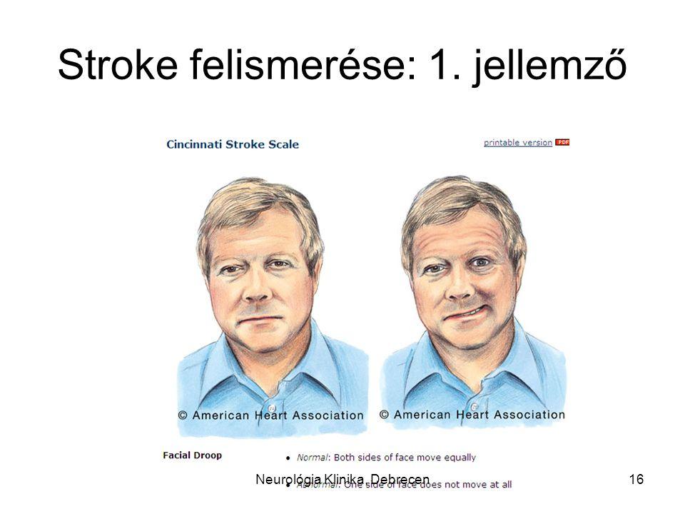 Stroke felismerése: 1. jellemző 16Neurológia Klinika, Debrecen