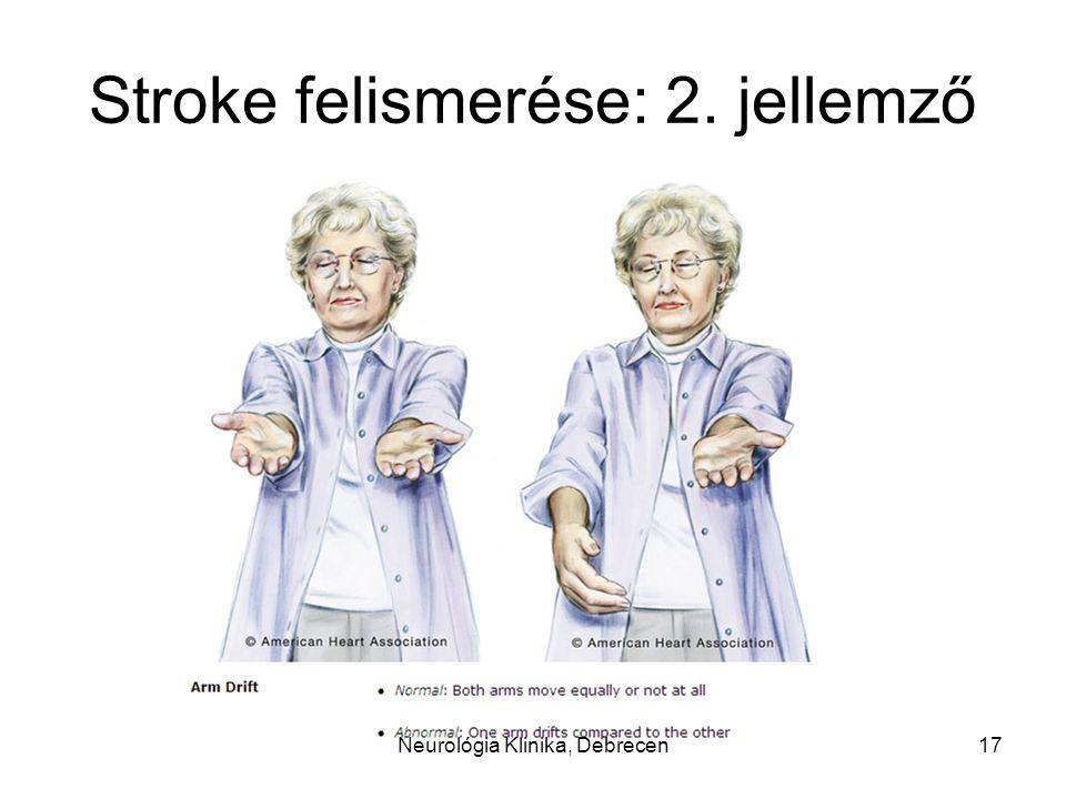 Stroke felismerése: 2. jellemző 17Neurológia Klinika, Debrecen