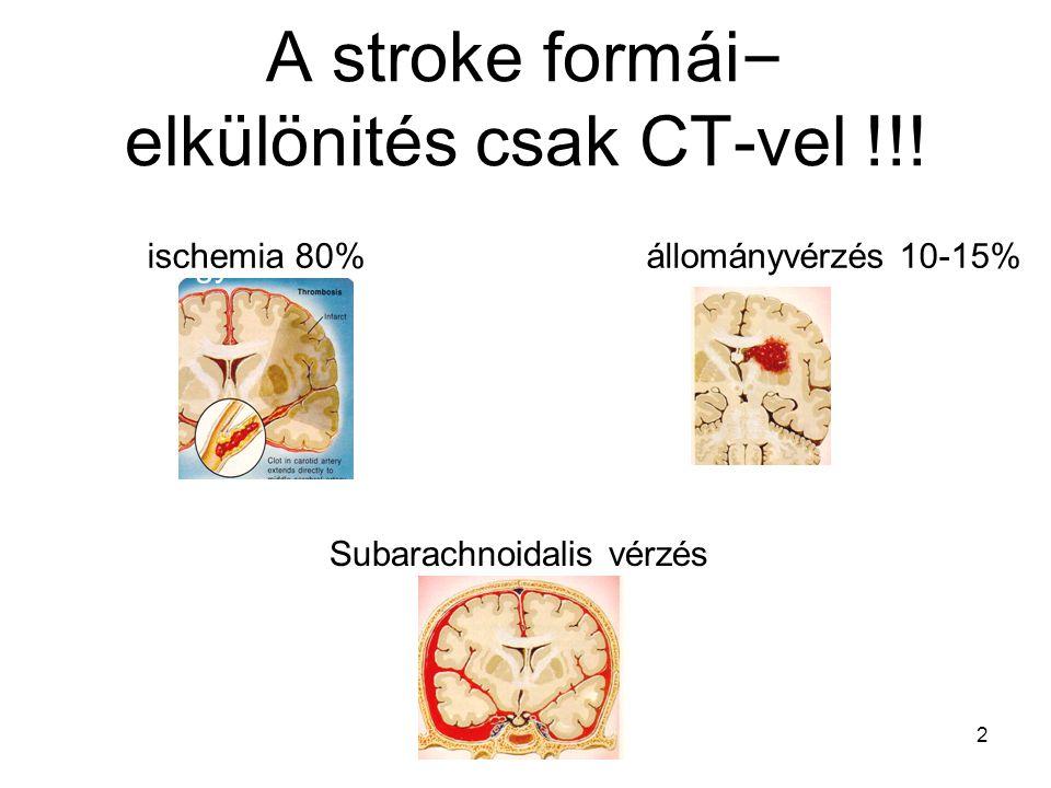 A stroke formái – elkülönités csak CT-vel !!! Agyi infarktus 80% Vérzés 20% ischemia 80% állományvérzés 10-15% 2 Subarachnoidalis vérzés