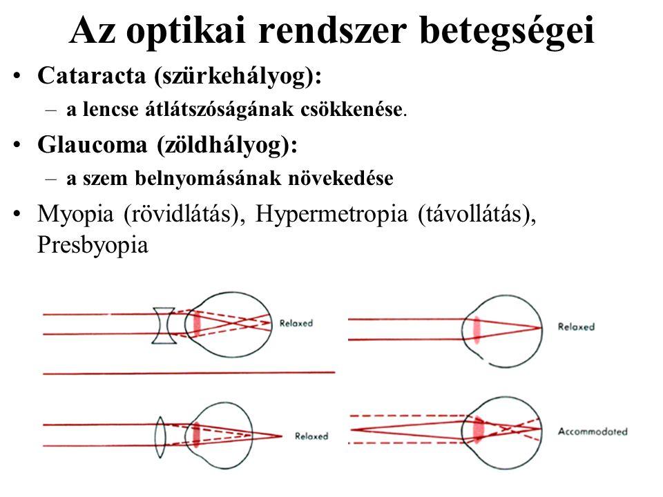 Az optikai rendszer betegségei Cataracta (szürkehályog): –a lencse átlátszóságának csökkenése. Glaucoma (zöldhályog): –a szem belnyomásának növekedése