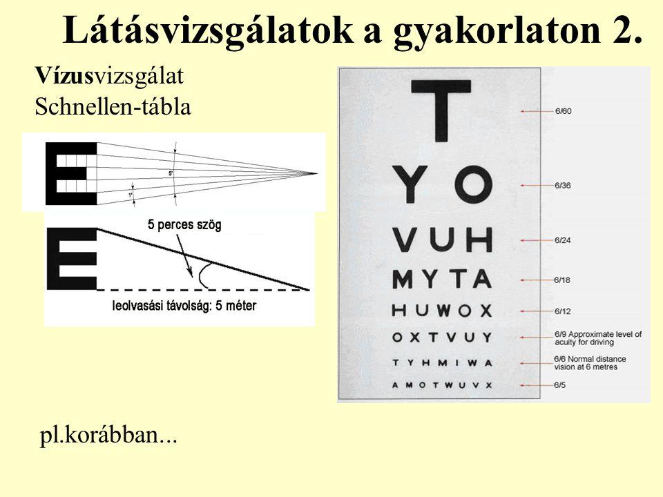 Vízusvizsgálat Schnellen-tábla Látásvizsgálatok a gyakorlaton 2. pl.korábban...