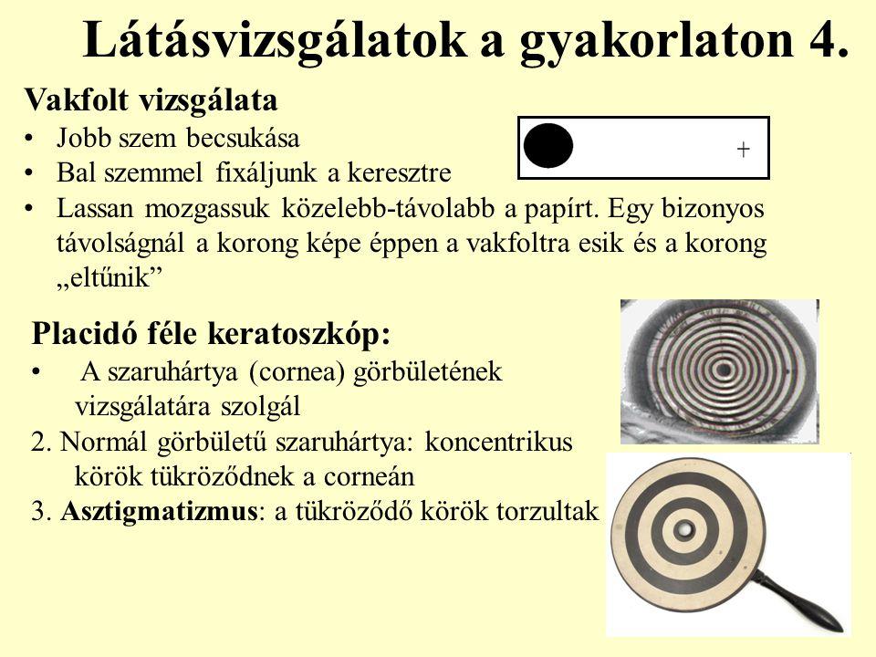 Látásvizsgálatok a gyakorlaton 4. Vakfolt vizsgálata Jobb szem becsukása Bal szemmel fixáljunk a keresztre Lassan mozgassuk közelebb-távolabb a papírt