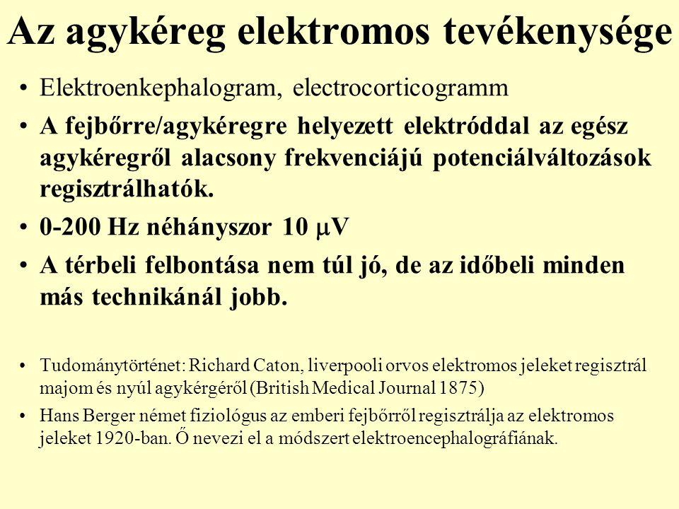 Az agykéreg elektromos tevékenysége Elektroenkephalogram, electrocorticogramm A fejbőrre/agykéregre helyezett elektróddal az egész agykéregről alacson