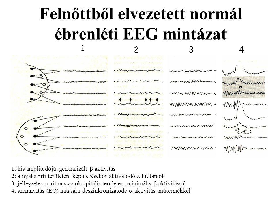 Felnőttből elvezetett normál ébrenléti EEG mintázat 2 1 3 4 1: kis amplitúdójú, generalizált  aktivitás 2: a nyakszirti területen, kép nézésekor akti