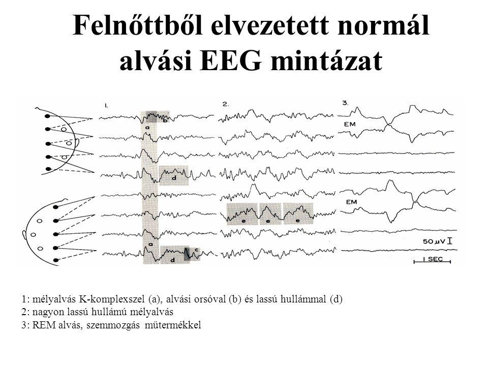 Felnőttből elvezetett normál alvási EEG mintázat 1: mélyalvás K-komplexszel (a), alvási orsóval (b) és lassú hullámmal (d) 2: nagyon lassú hullámú mél