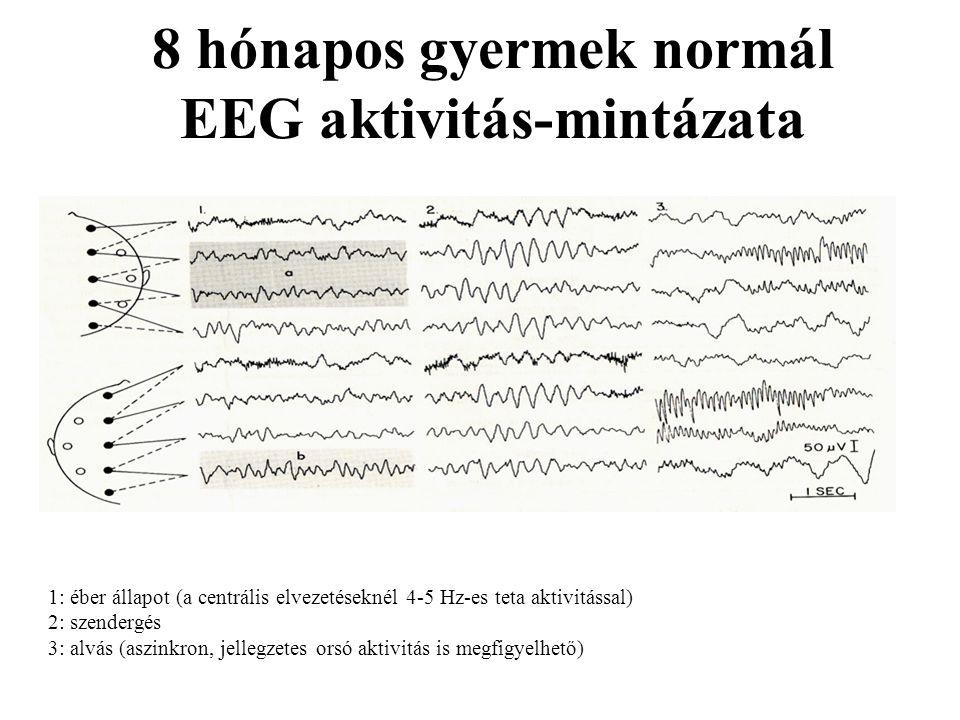 8 hónapos gyermek normál EEG aktivitás-mintázata 1: éber állapot (a centrális elvezetéseknél 4-5 Hz-es teta aktivitással) 2: szendergés 3: alvás (aszi
