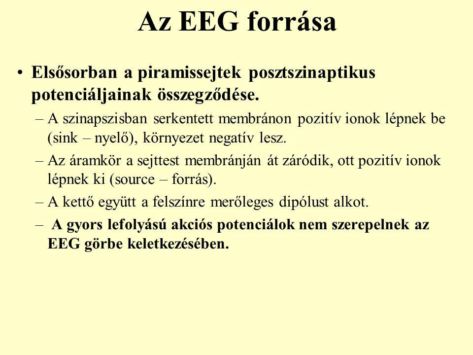 Felnőttből elvezetett normál ébrenléti EEG mintázat 2 1 3 4 1: kis amplitúdójú, generalizált  aktivitás 2: a nyakszirti területen, kép nézésekor aktiválódó hullámok 3: jellegzetes  ritmus az okcipitális területen, minimális  aktivitással 4: szemnyitás (EO) hatására deszinkronizálódó  aktivitás, műtermékkel