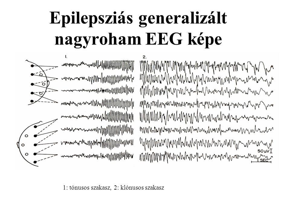 Epilepsziás generalizált nagyroham EEG képe 1: tónusos szakasz, 2: klónusos szakasz