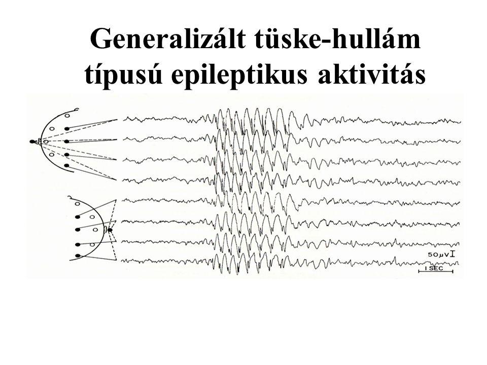 Generalizált tüske-hullám típusú epileptikus aktivitás