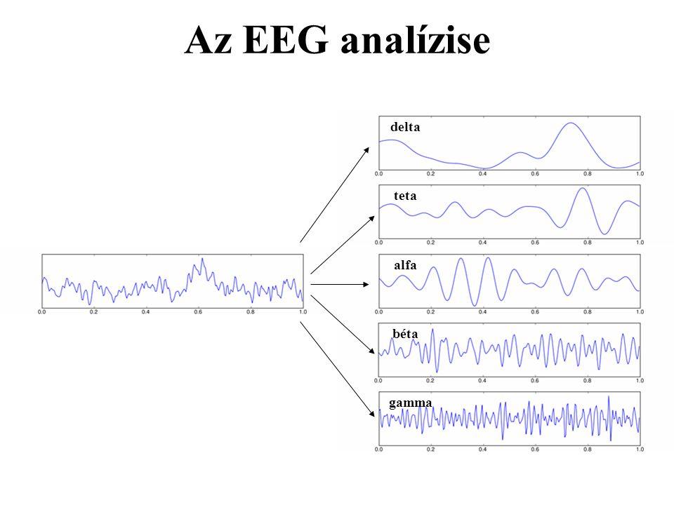 Az EEG analízise delta teta alfa béta gamma