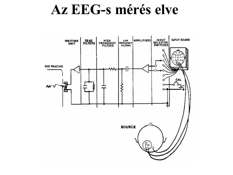 Az EEG hullámok frekvencia szerinti felosztása