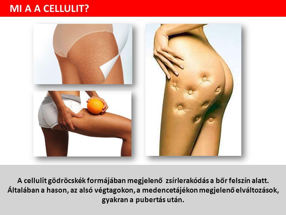 A cellulit gödröcskék formájában megjelenő zsírlerakódás a bőr felszín alatt.