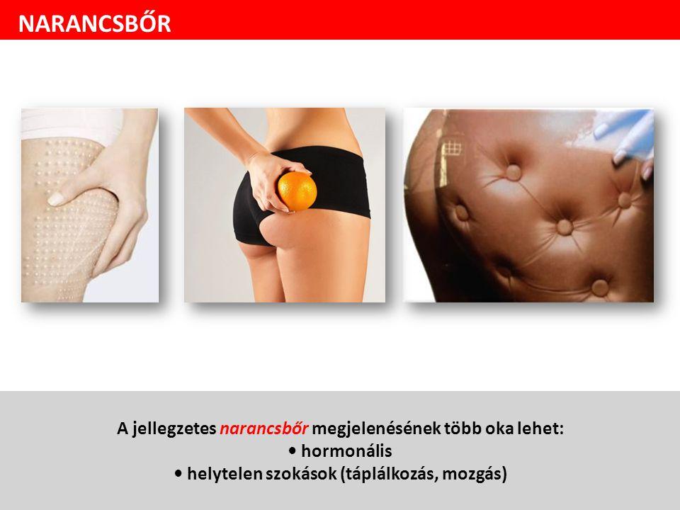 A jellegzetes narancsbőr megjelenésének több oka lehet: hormonális helytelen szokások (táplálkozás, mozgás) NARANCSBŐR