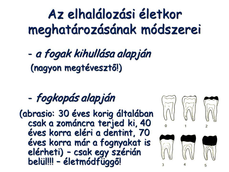 Az elhalálozási életkor meghatározásának módszerei - a fogak kihullása alapján (nagyon megtévesztő!) (nagyon megtévesztő!) - fogkopás alapján (abrasio