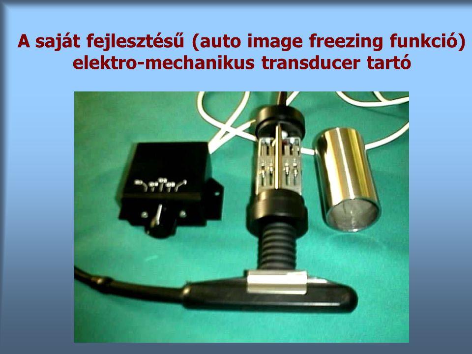 A saját fejlesztésű (auto image freezing funkció) elektro-mechanikus transducer tartó