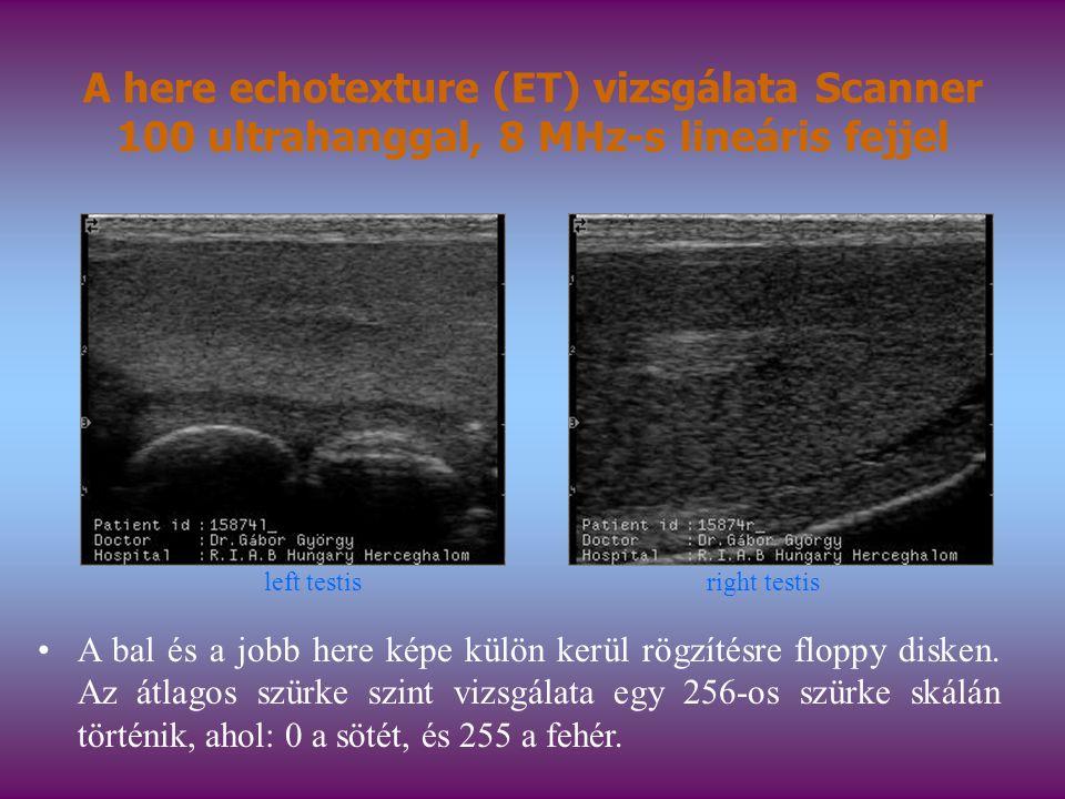 A here echotexture (ET) vizsgálata Scanner 100 ultrahanggal, 8 MHz-s lineáris fejjel A bal és a jobb here képe külön kerül rögzítésre floppy disken. A