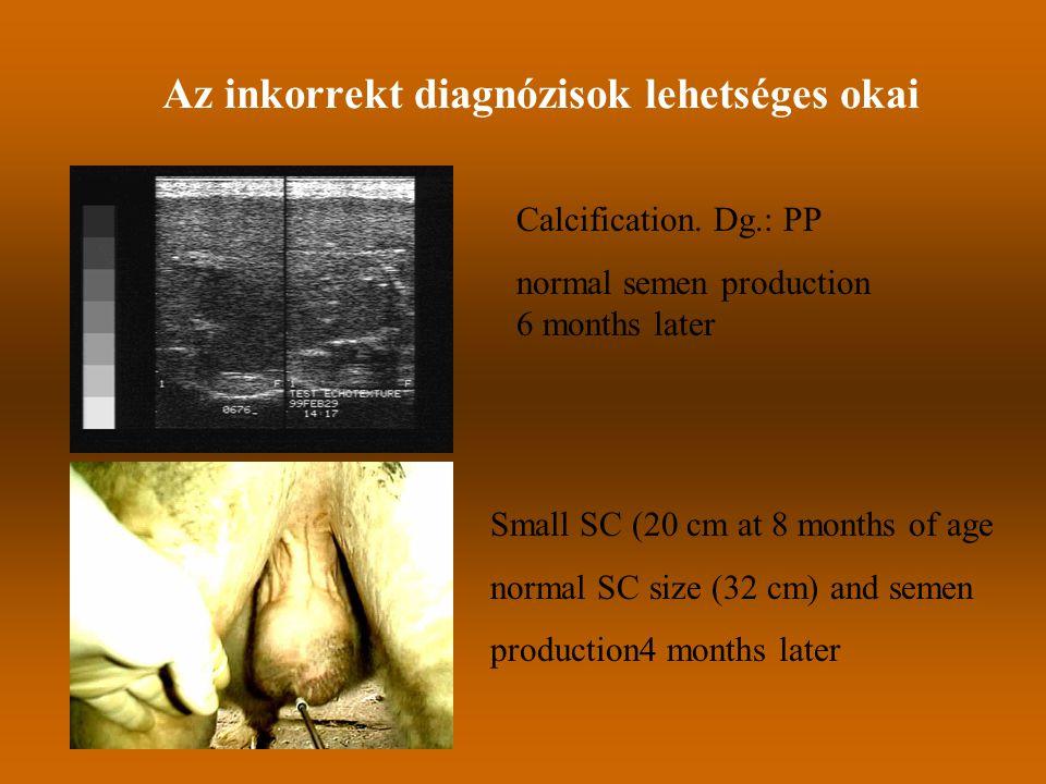 Az inkorrekt diagnózisok lehetséges okai Calcification. Dg.: PP normal semen production 6 months later Small SC (20 cm at 8 months of age normal SC si