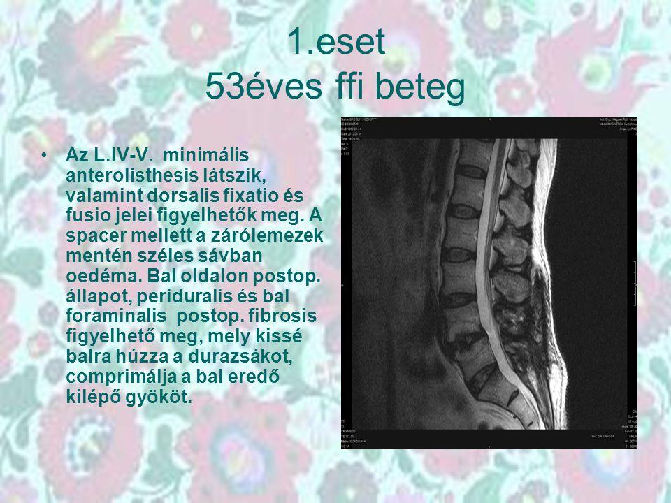 1.eset 53éves ffi beteg Az L.IV-V. minimális anterolisthesis látszik, valamint dorsalis fixatio és fusio jelei figyelhetők meg. A spacer mellett a zár