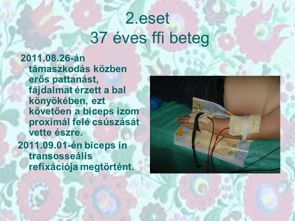 2.eset 37 éves ffi beteg 2011.08.26-án támaszkodás közben erős pattanást, fájdalmat érzett a bal könyökében, ezt követően a biceps izom proximál felé