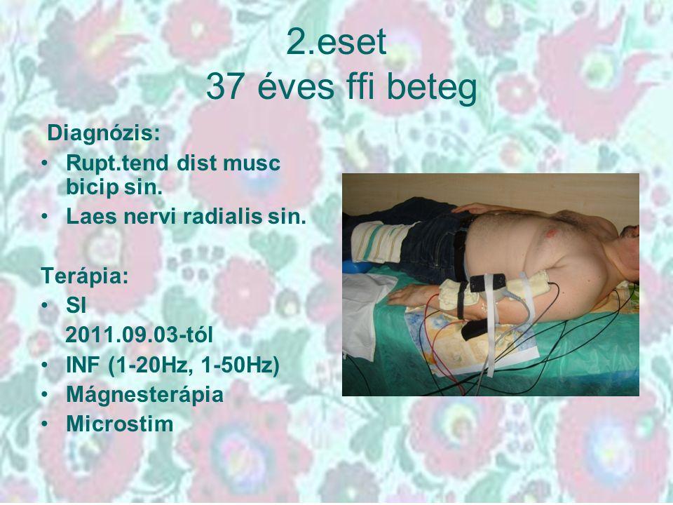 2.eset 37 éves ffi beteg Diagnózis: Rupt.tend dist musc bicip sin. Laes nervi radialis sin. Terápia: SI 2011.09.03-tól INF (1-20Hz, 1-50Hz) Mágnesterá