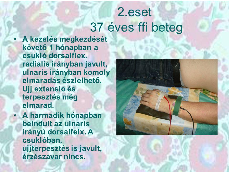 2.eset 37 éves ffi beteg A kezelés megkezdését követő 1 hónapban a csukló dorsalflex. radialis irányban javult, ulnaris irányban komoly elmaradás észl