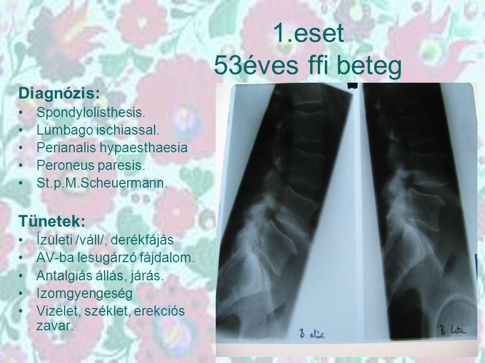 1.eset 53éves ffi beteg Diagnózis: Spondylolisthesis. Lumbago ischiassal. Perianalis hypaesthaesia Peroneus paresis. St.p.M.Scheuermann. Tünetek: Ízül