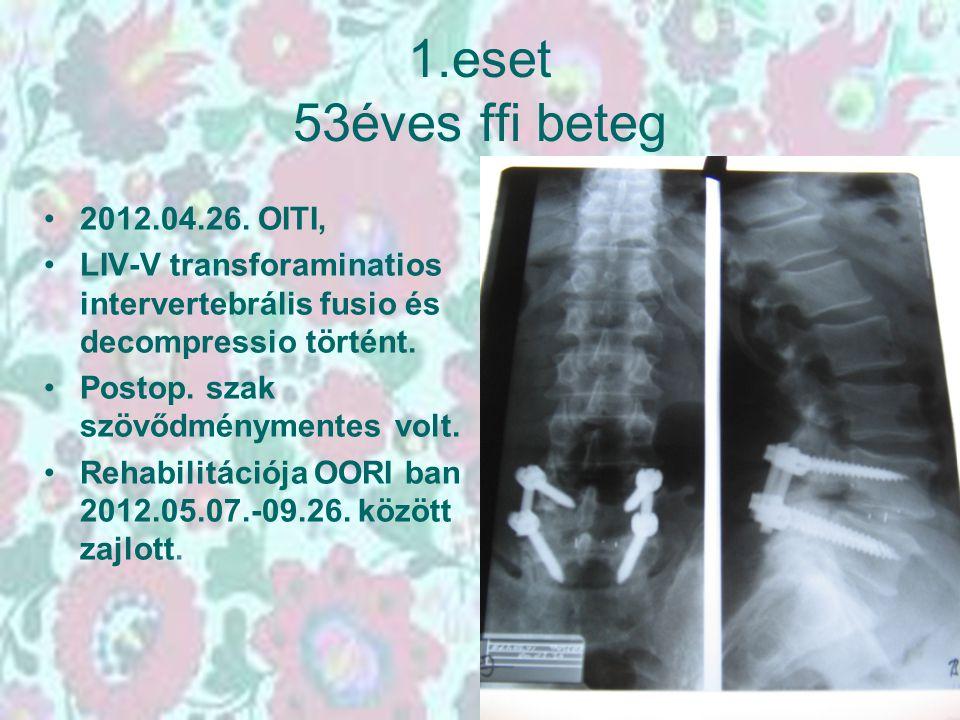 1.eset 53éves ffi beteg 2012.04.26. OITI, LIV-V transforaminatios intervertebrális fusio és decompressio történt. Postop. szak szövődménymentes volt.