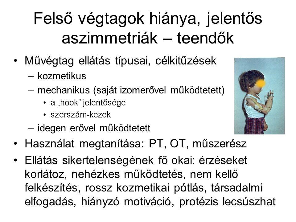 Felső végtagok hiánya, jelentős aszimmetriák – teendők Csonk ápolása Két kéz hiánya esetén más módszerek megtanítása (lábak, fej, száj használata) A művégtag felvételének a tanítása Önellátás tanítása, egykezes életmód, segédeszközei (tapadás-gátló alátétek, rögzített eszközök) Pszichológiai támogatás Tapintást javító megoldások a protézisen Befogadó munkahelyi környezet kialakítása