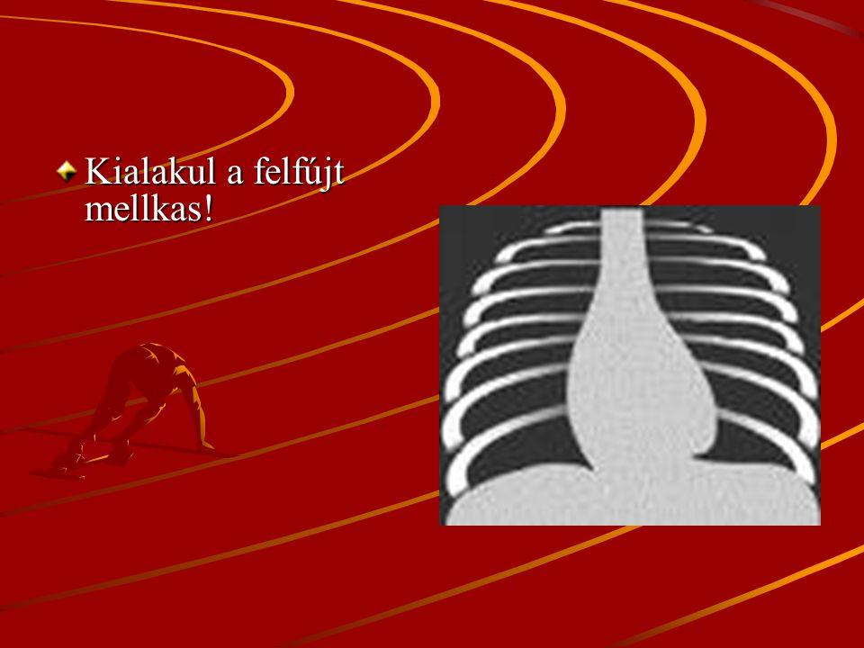 I.Mozgásszervi előnyök Megakadályozza: A belégző és segéd légző izmok zsugorodását.