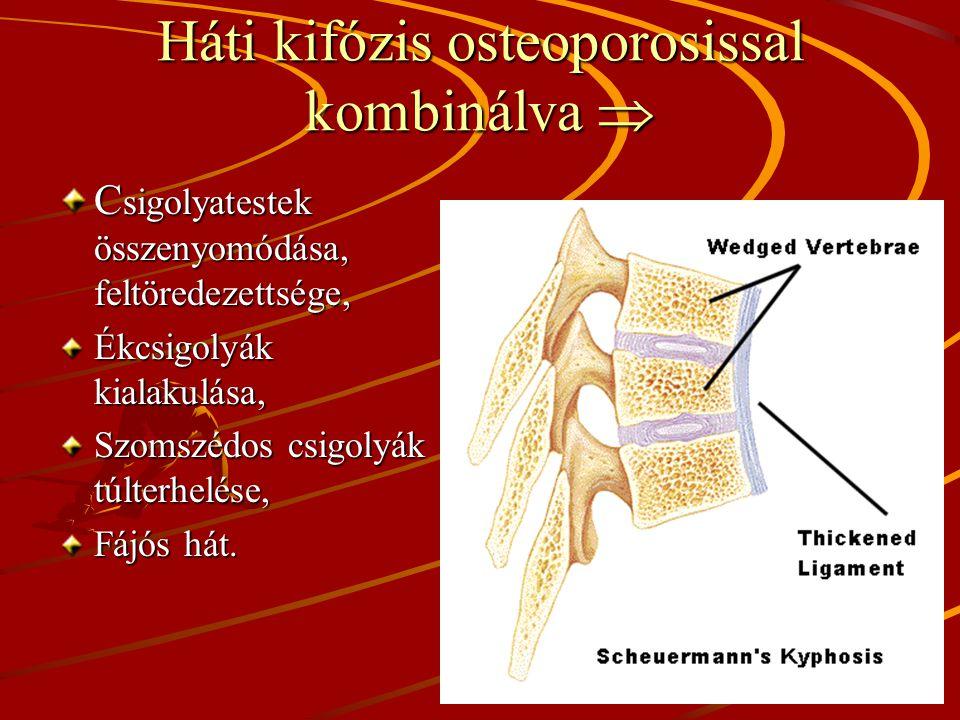 Háti kifózis osteoporosissal kombinálva  C sigolyatestek összenyomódása, feltöredezettsége, Ékcsigolyák kialakulása, Szomszédos csigolyák túlterhelése, Fájós hát.
