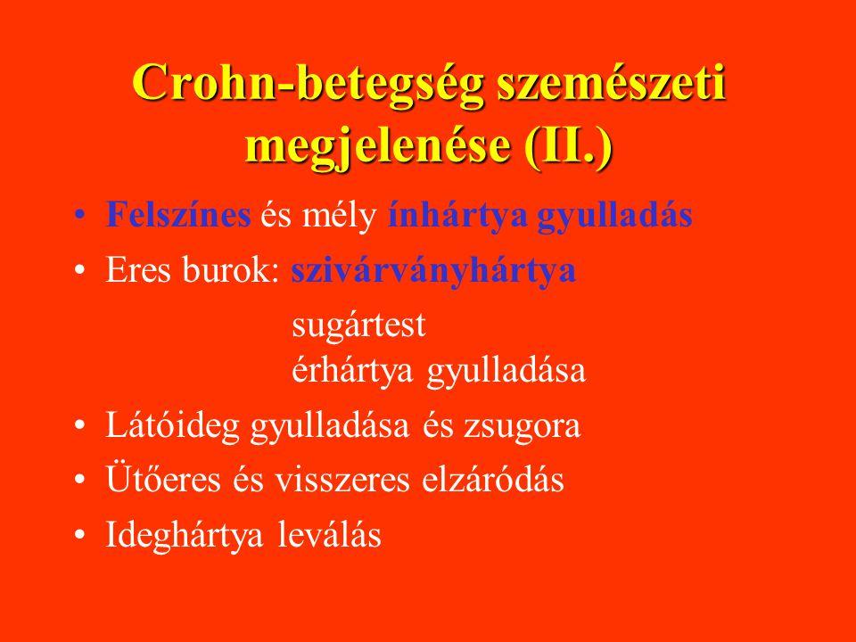 Crohn-betegség szemészeti megjelenése (II.) Felszínes és mély ínhártya gyulladás Eres burok: szivárványhártya sugártest érhártya gyulladása Látóideg gyulladása és zsugora Ütőeres és visszeres elzáródás Ideghártya leválás