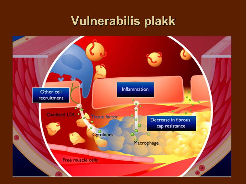 Vulnerabilis plakk