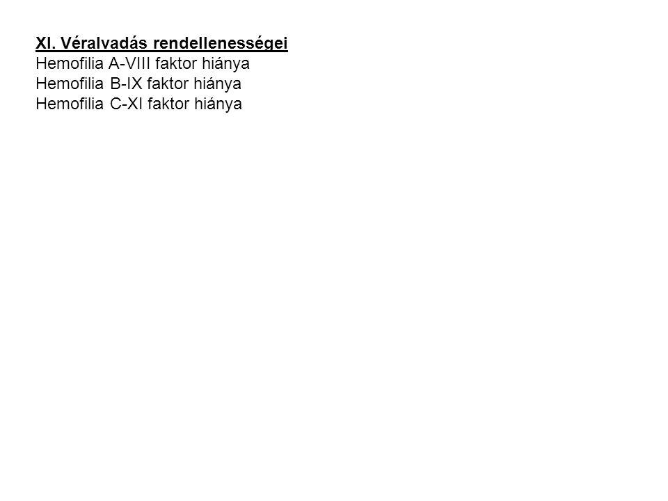XI. Véralvadás rendellenességei Hemofilia A-VIII faktor hiánya Hemofilia B-IX faktor hiánya Hemofilia C-XI faktor hiánya