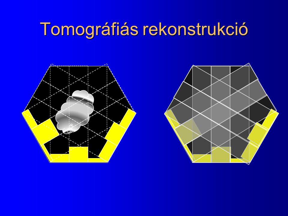 Tomográfiás rekonstrukció