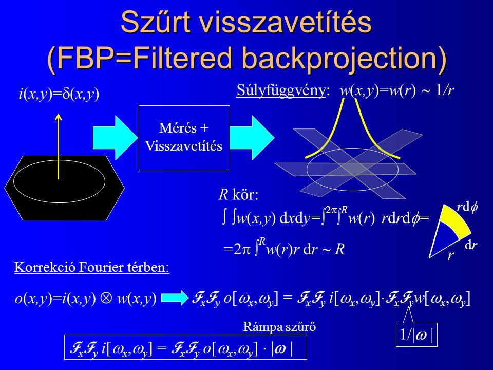 Szűrt visszavetítés (FBP=Filtered backprojection) Mérés + Visszavetítés w(x,y)=w(r)  1/r i(x,y)=  (x,y)  w(x,y) dxdy=  2   R w(r) rdrd  = =2 