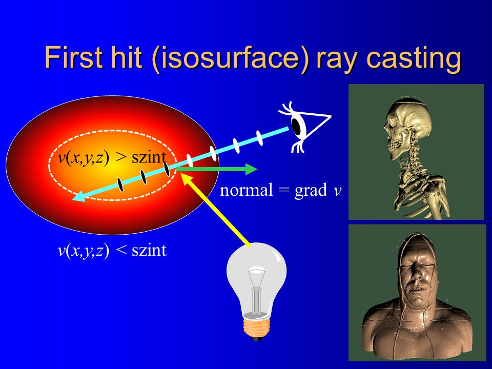 First hit (isosurface) ray casting normal = grad v v(x,y,z) > szint v(x,y,z) < szint
