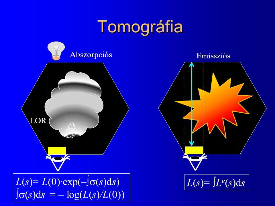 Tomográfia L(s)= L(0)·exp(–  (s)ds)  (s)ds = – log(L(s)/L(0)) L(s)=  L e (s)ds Abszorpciós Emissziós LOR