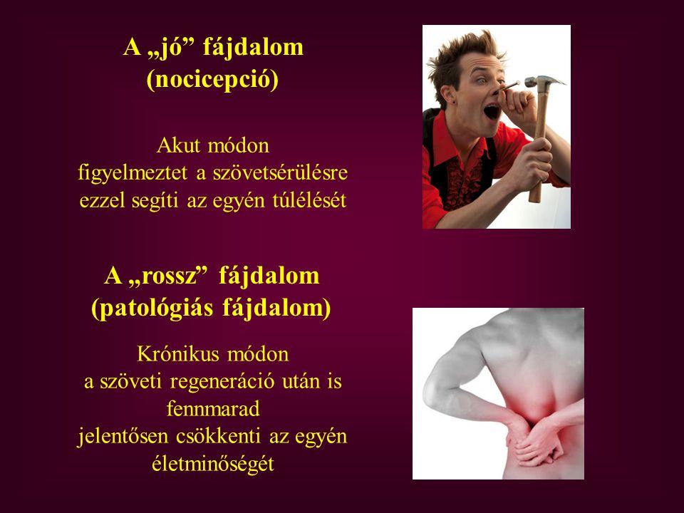 """A """"jó fájdalom (nocicepció) A """"rossz fájdalom (patológiás fájdalom) Akut módon figyelmeztet a szövetsérülésre ezzel segíti az egyén túlélését Krónikus módon a szöveti regeneráció után is fennmarad jelentősen csökkenti az egyén életminőségét"""