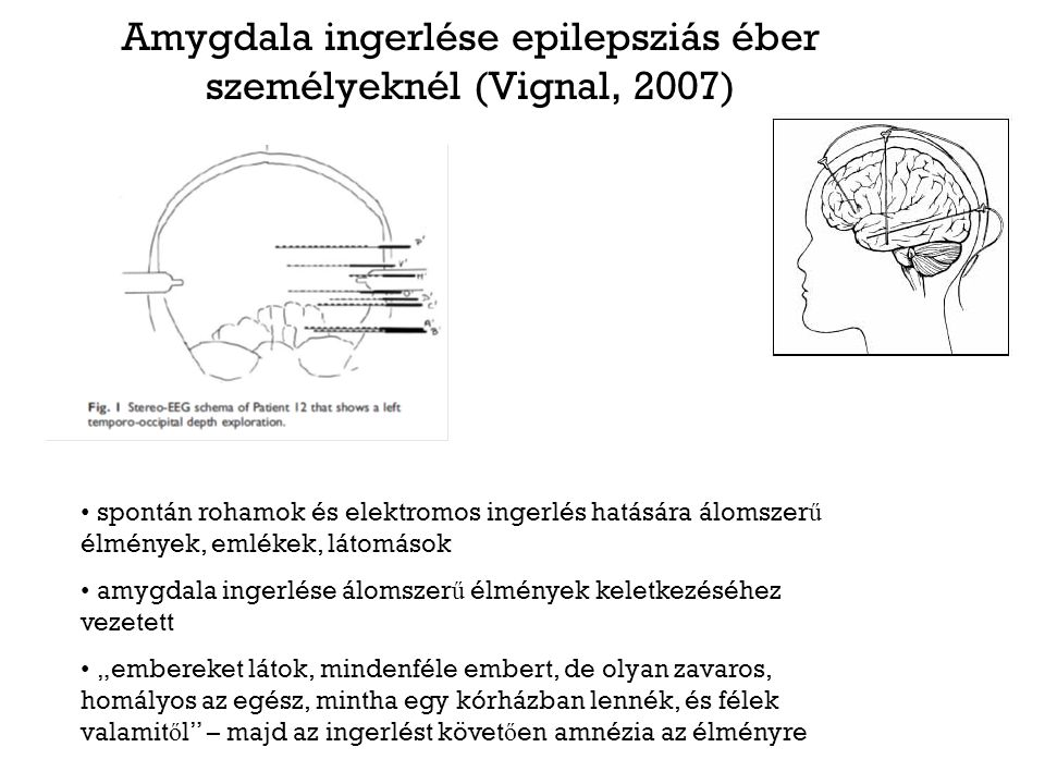 Amygdala ingerlése epilepsziás éber személyeknél (Vignal, 2007) spontán rohamok és elektromos ingerlés hatására álomszer ű élmények, emlékek, látomáso