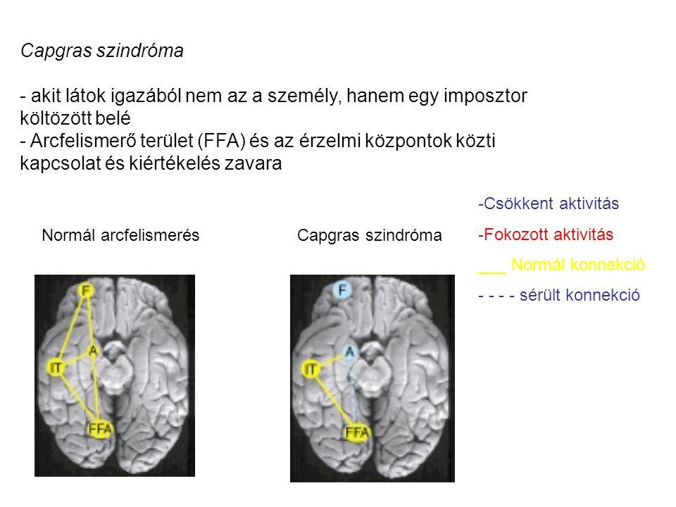 Normál arcfelismerésCapgras szindróma - akit látok igazából nem az a személy, hanem egy imposztor költözött belé - Arcfelismerő terület (FFA) és az ér