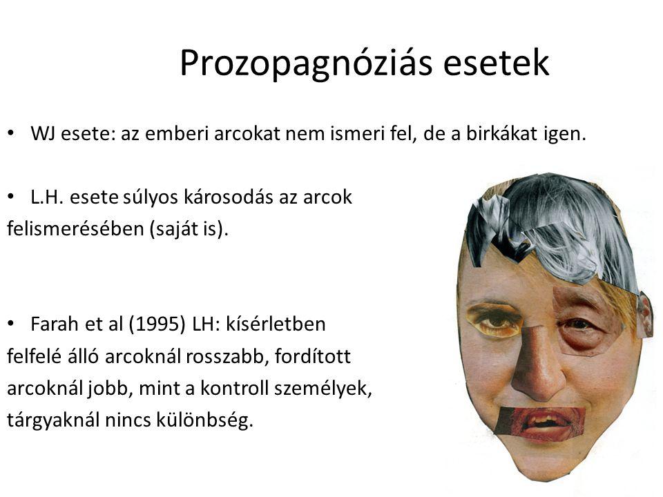 Prozopagnóziás esetek WJ esete: az emberi arcokat nem ismeri fel, de a birkákat igen. L.H. esete súlyos károsodás az arcok felismerésében (saját is).