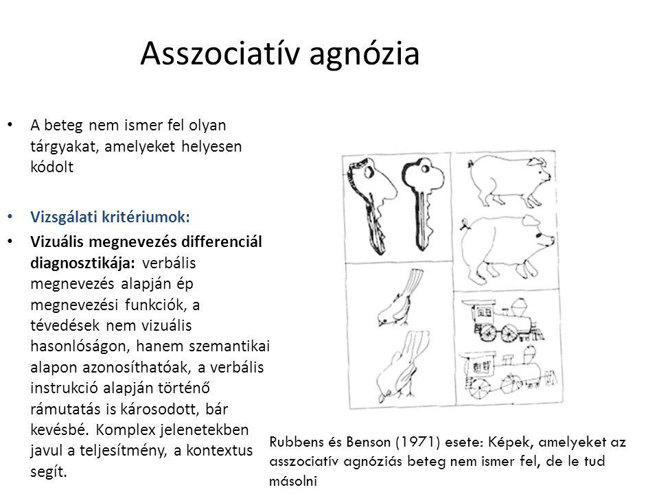 Asszociatív agnózia A beteg nem ismer fel olyan tárgyakat, amelyeket helyesen kódolt Vizsgálati kritériumok: Vizuális megnevezés differenciál diagnosz